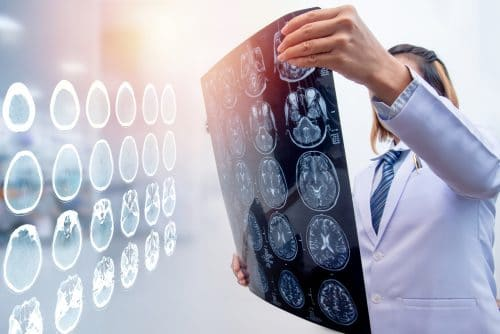 Choose a Brain Accident Attorney Who Gets Results