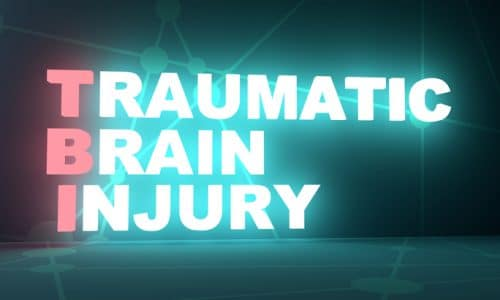 Get the Answers You Need to Frequently Asked Questions About Traumatic Brain Injuries